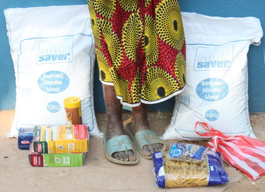 The contents of a food hamper that St. Albert's Mission Hospital has provided an 80-year old woman. Her feet and legs show signs of pellagra, a form of malnourishment.